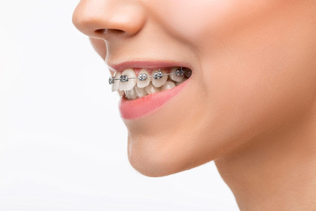 Complications of Overbite & Overbite Treatment for Different Age Groups