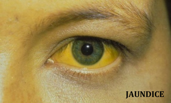 Jaundice of the Skin and Sclera as can be seen in Yellow Fever