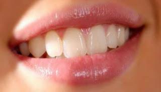 10 Bahan Alami Untuk Mencerahkan Bibir Gelap