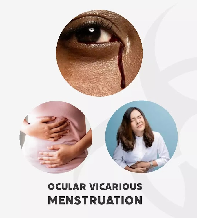 Ocular vicarious menstruation