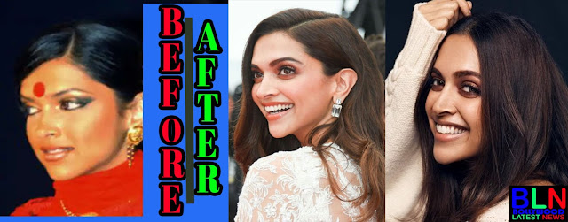 DEEPIKA PADUKONE Bollywood Actresses Before and After Plastic Surgery