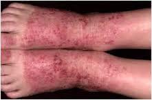 Jual obat eksim untuk mengatasi kulit bintik merah di kaki