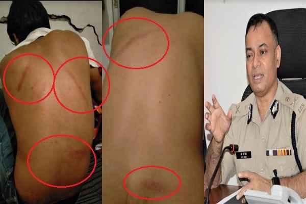 anangpur-youth-beaten-dayalbagh-police-chowki-surajkund-thana-sho-cp-op-singh
