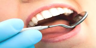 Εξαφανίστε την πλάκα των δοντιών με φυσικούς τρόπους σε δέκα ημέρες