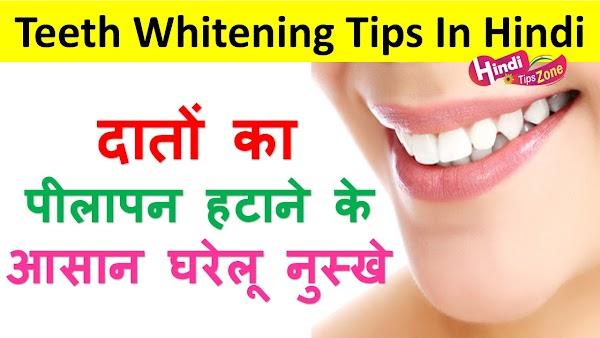 दांतों का पीलापन दूर करे कुछ इस तरह | Teeth Whitening Tips In Hindi