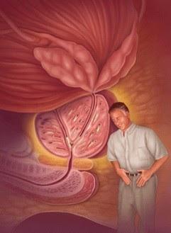 Mikroelemek prosztatitis Prostatitis rák 4 fok