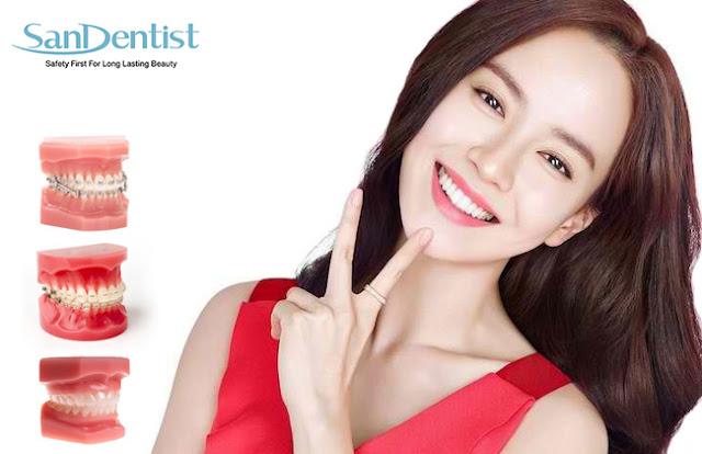 Mọc răng khôn là gì? Nhổ răng khôn có nguy hiểm không?