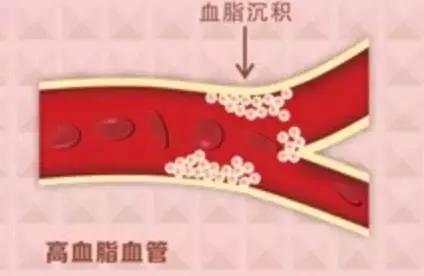 4種疾病最容易與高血壓狼狽為奸(高血脂、糖尿病)