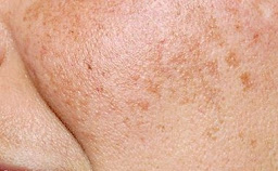 الكلف هو شكل من أشكال فرط التصبغ الذي يسبب بقع داكنة على الجلد
