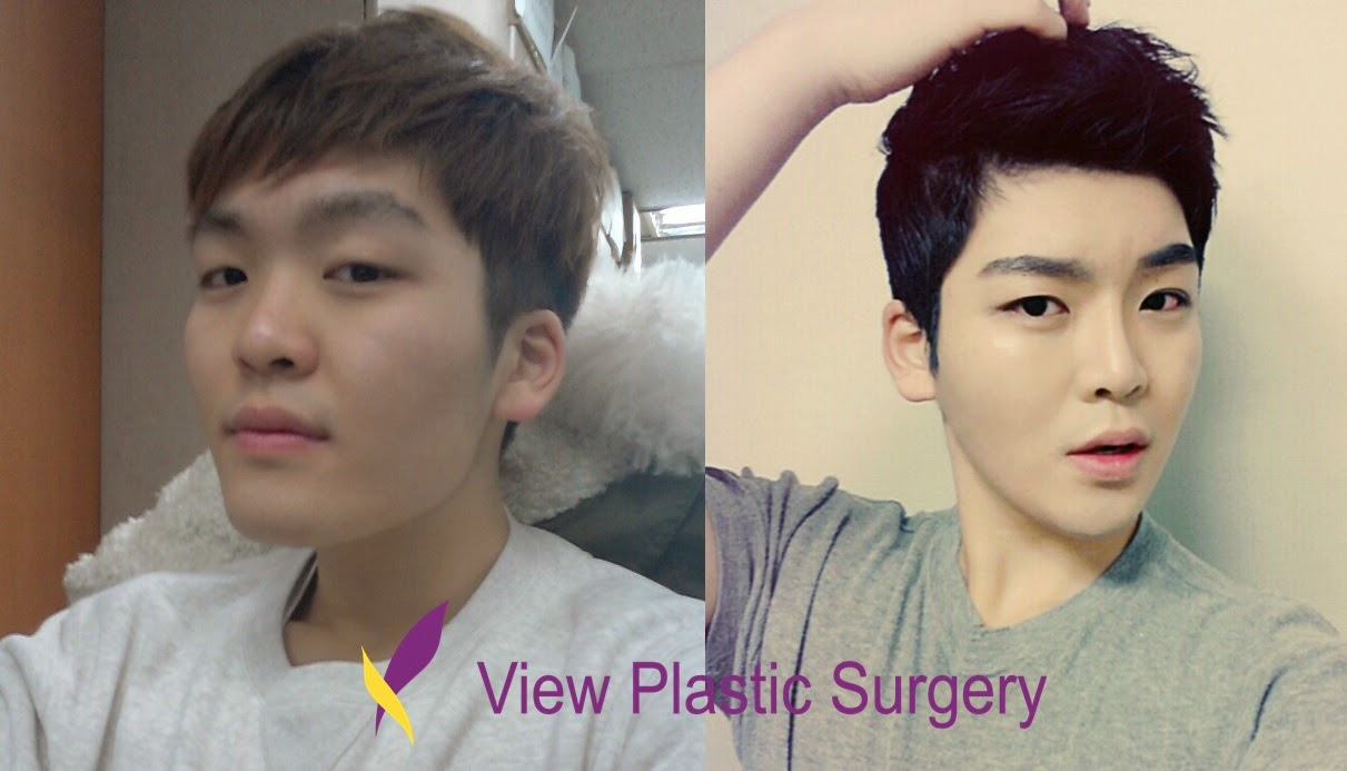 view plastic surgery korea - humble idol before & after diary