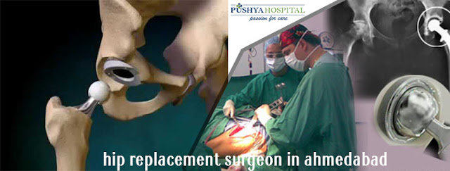 Hip Replacement Surgeon in Ahmedabad