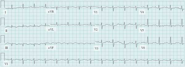 ECG Wide Complex Tachycardia