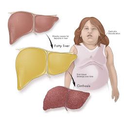 Ciri Ciri Penderita Penyakit Liver