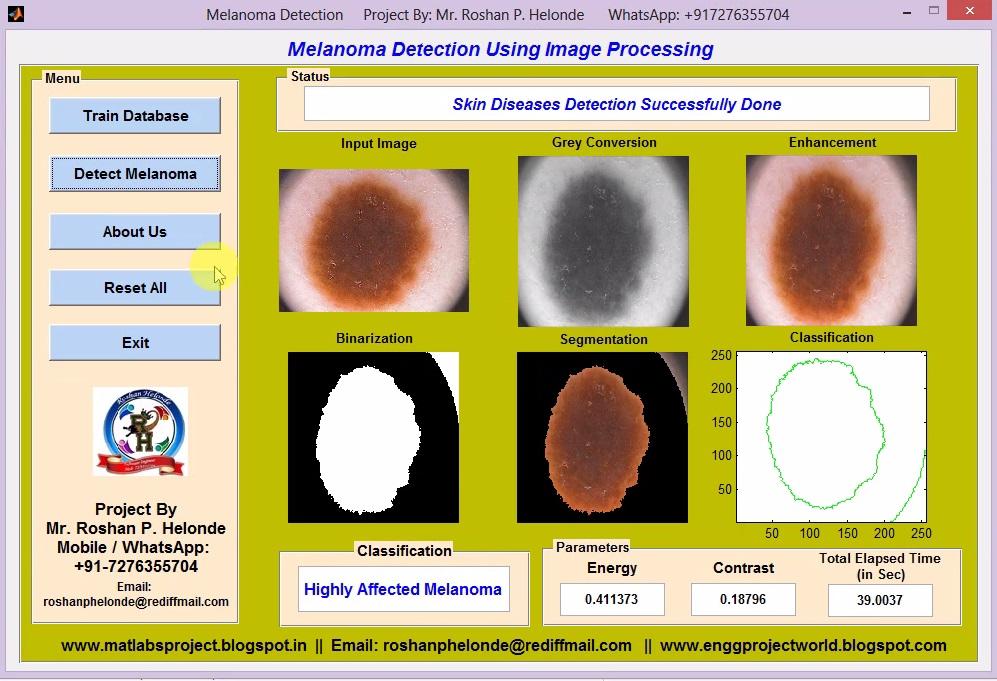 Skin Cancer Detection Using Image Processing Matlab Code