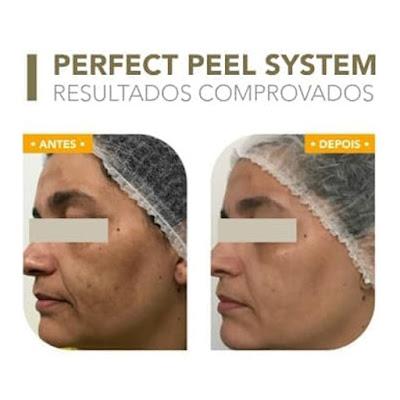 antes-e-depois-clareamento-de-pele-inteligente-bioage-perfect-peel-system-05-sessoes