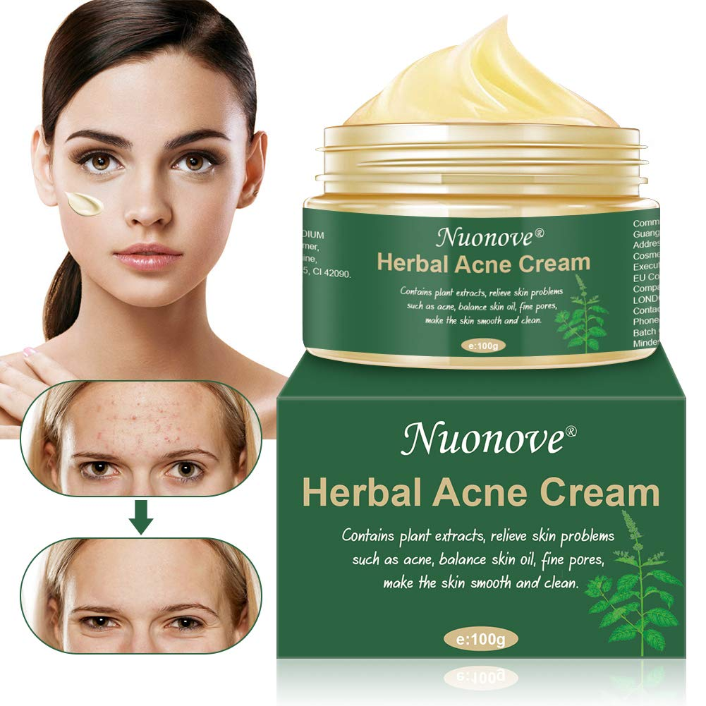 Best Acne Scar Remover Creams Anti Pimple Creams