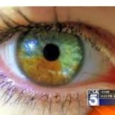 눈 색깔 조정을 위한 레이저 아이 트리트먼트