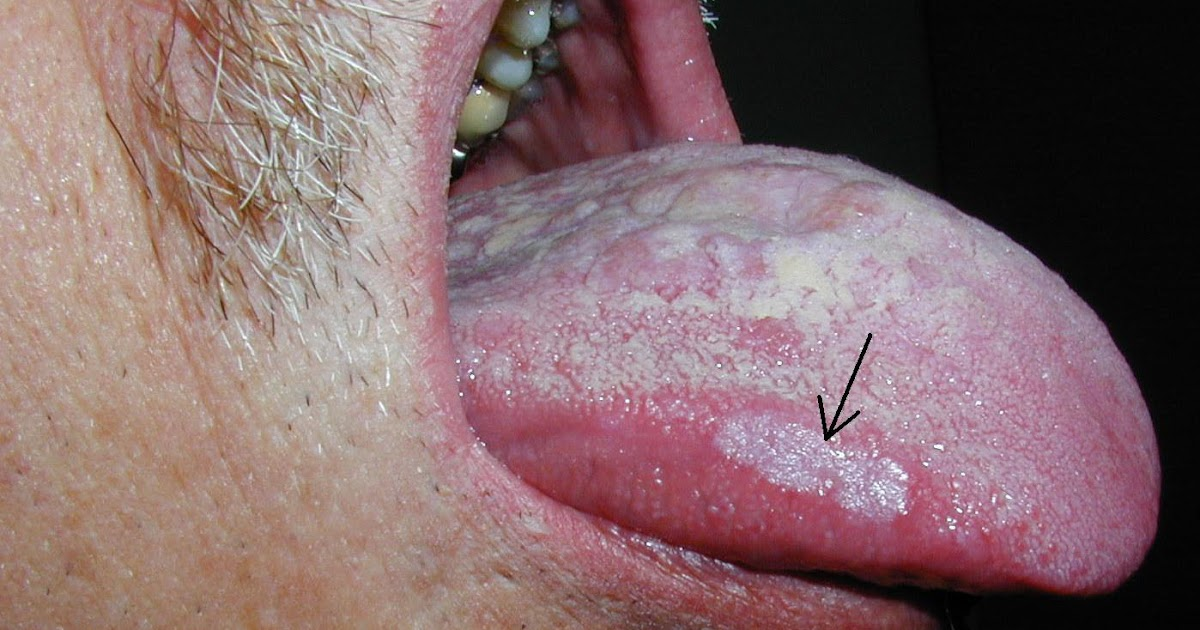 White Spots On Gums From Smoking