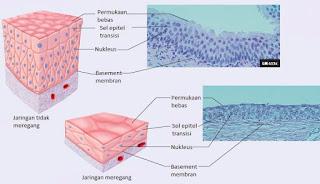 Epitel transisi bertingkat pada kandung kemih