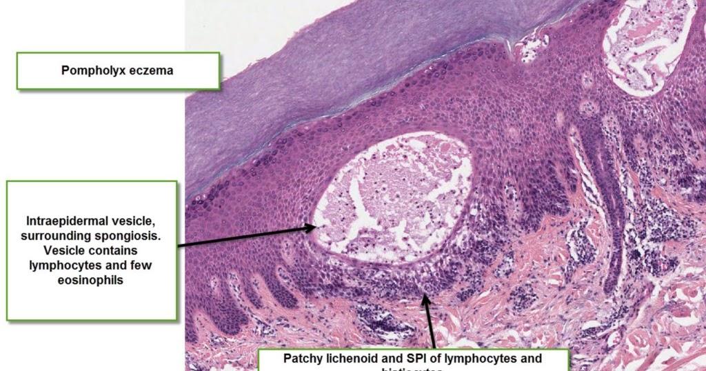 Dermatopathology Made Simple - Inflammatory: Vesicles or ...