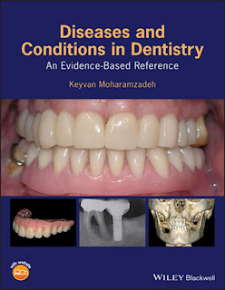 Diseases and Conditions in Dentistry An Evidence-Based Reference by Keyvan Moharamzadeh