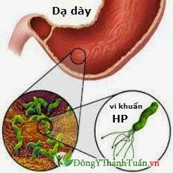 Nguyên nhân bệnh viêm loét dạ dày - tá tràng