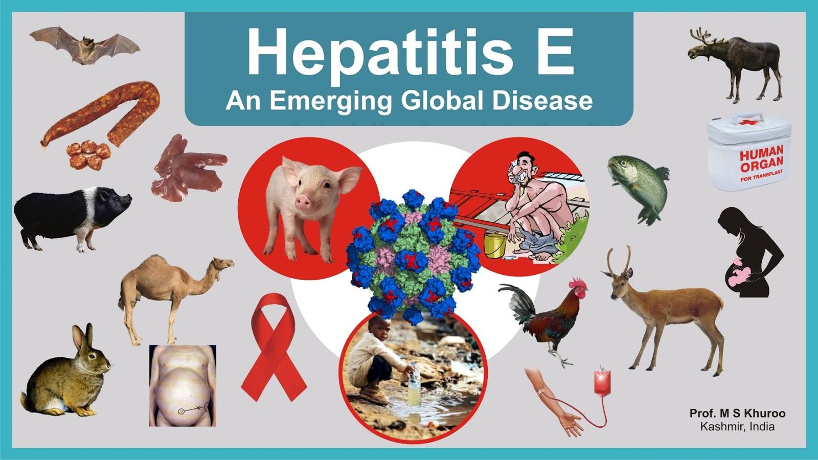 Hepatitis E Milagros Online