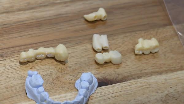 大葉大學產學合作研發牙材技術 讓假牙更耐用