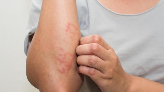 psoriasis dermatologo online