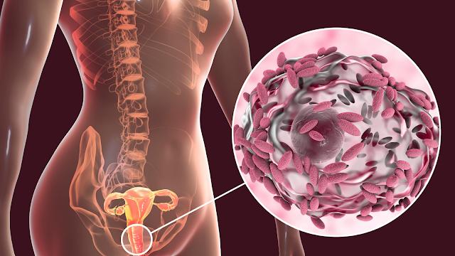 7 remèdes naturels à portée de main pour traiter la vaginose bactérienne