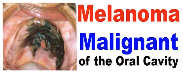 oral melanoma malignant