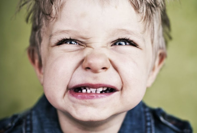 PDF: Bruxism in children - causes and solutions - Journal of Dental Health Oral Disorders & Therapy