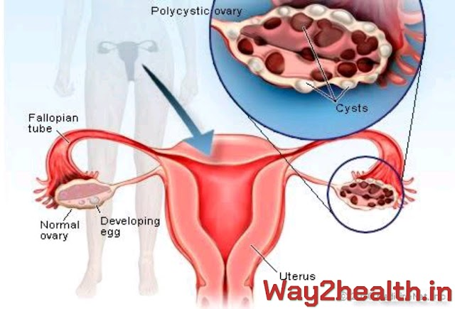 Polycystic Ovarian Syndrome - Diet and lifestyle for Management of PCOS