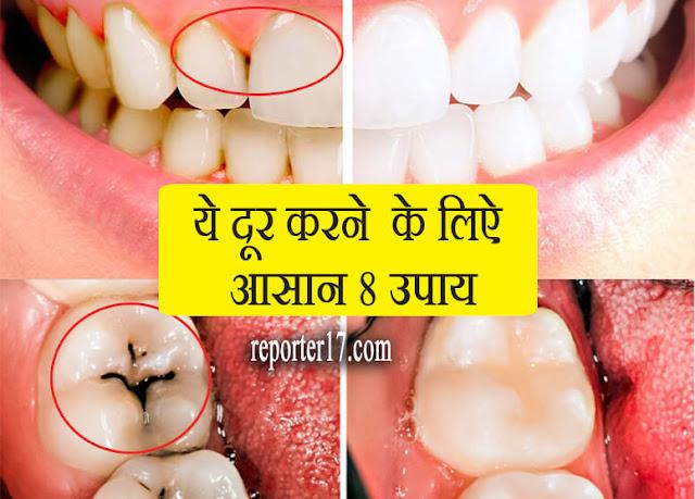 Health Tips : दांत के पिले धब्बे दूर करने के लिए करे ये 8 आसान तरीके