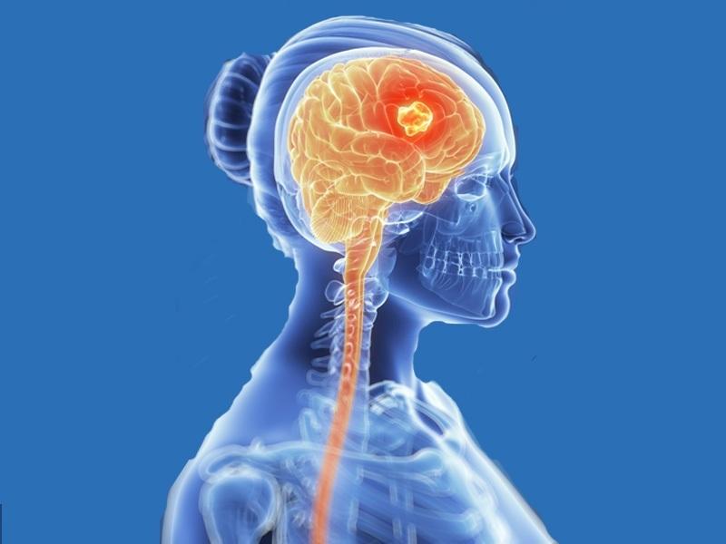 Sintomas e causas do câncer cerebral