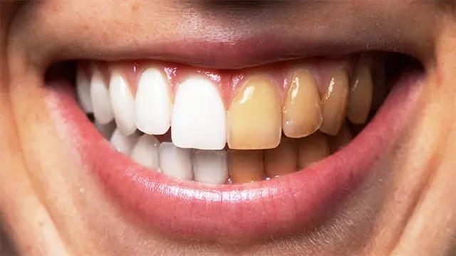 مشروبات تؤثر سلباً على لون أسنانك