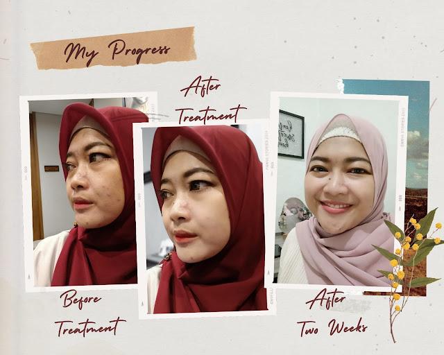 before after treatment acne peeling erha