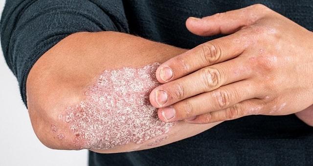 psoriasis faq guide dermatologist psoriatic skin information