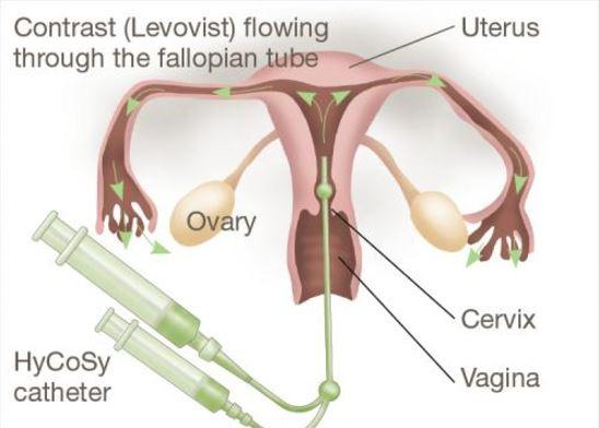 Histerosalpingosonografia. Novo exame infertilidade