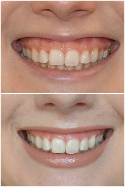 Illuminate Skin Clinic - Botox -Dr Sophie Shotter - Review - Before and after - Gummy smile - UK - hypermoblie lip - overly gummy smile - non surgical - fixing a gummy smile