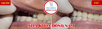 trồng răng implant ở đâu mùa world cup -7