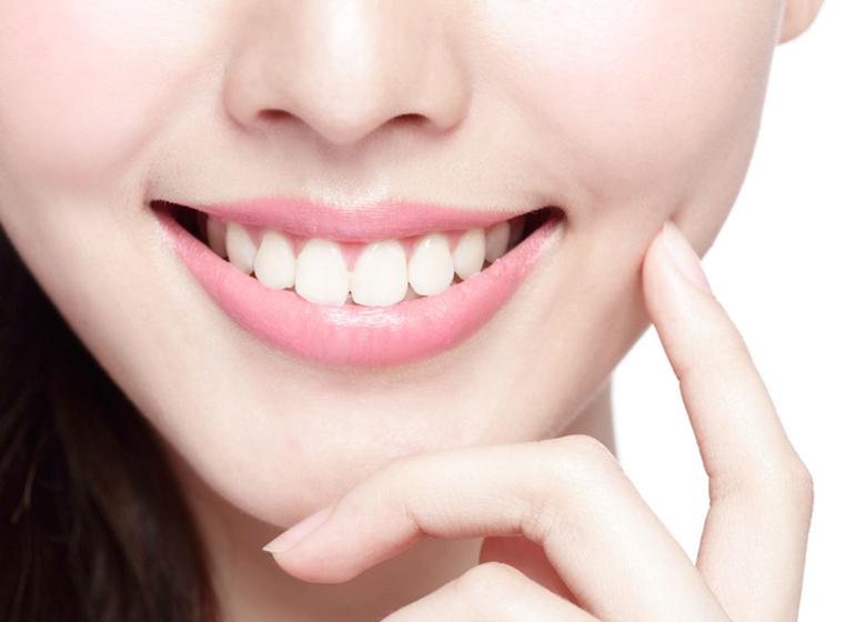 merawat veneer gigi