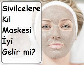Sivilcelere Kil Maskesi İyi Gelir mi