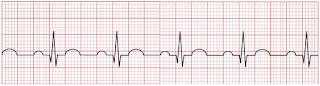 An ECG of a normal heartbeat.