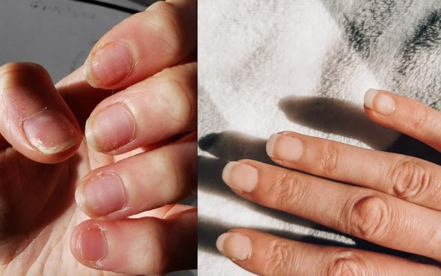 Piękne, długie i zdrowe paznokcie w 3 tygodnie!  - Czytaj więcej »