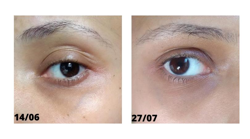 Sérum Vegano Para Área dos Olhos Hidrabene Antes e depois - resultado na pele