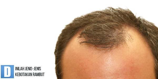 penyebab rambut botak, jenis rambut botak, mengatasi rambut botak, obat rambut botak
