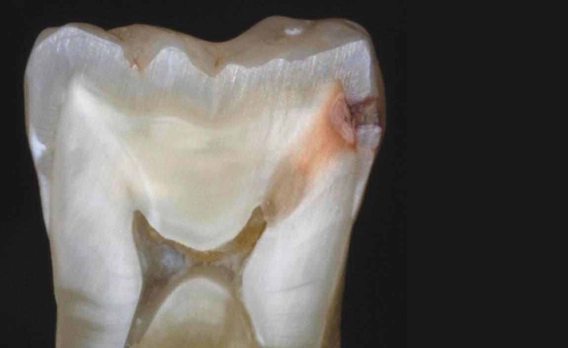 Resultado de imagen de pulpa dental , daño