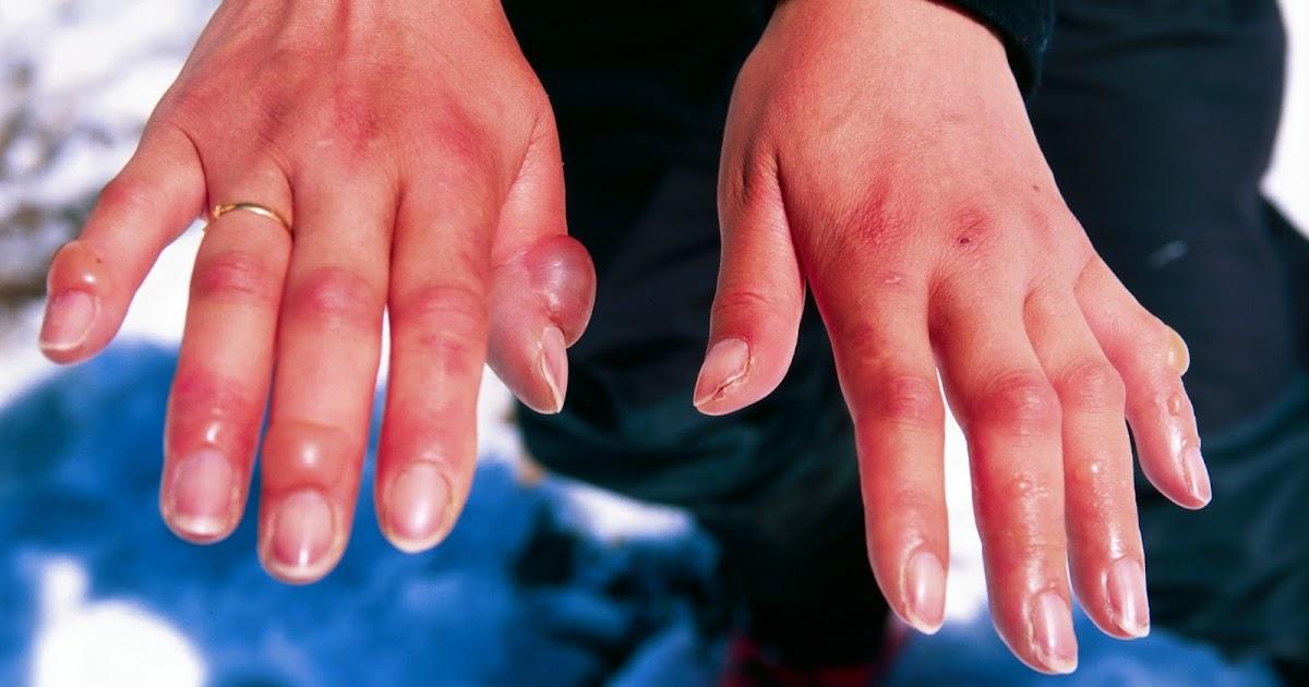 аллергия на серебро