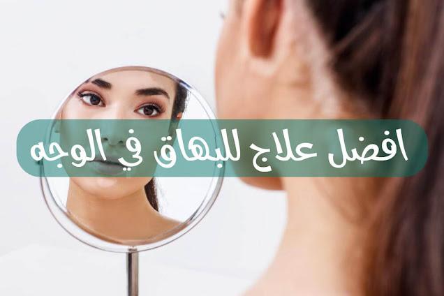 افضل علاج للبهاق في الوجه
